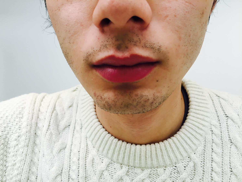 メンズTBC脱毛|料金や痛みについて【体験談】